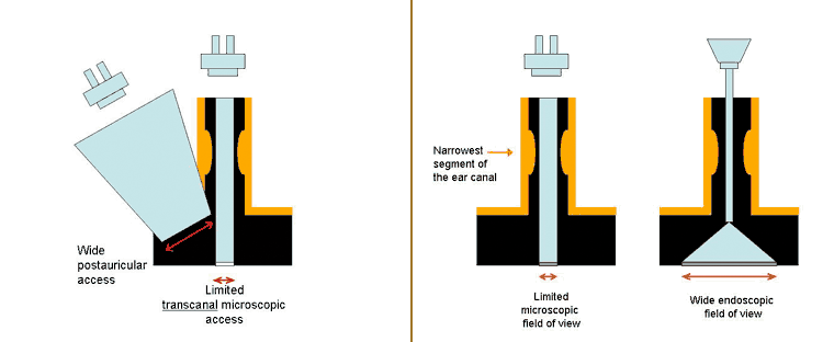 enscopic ear surgery field of view
